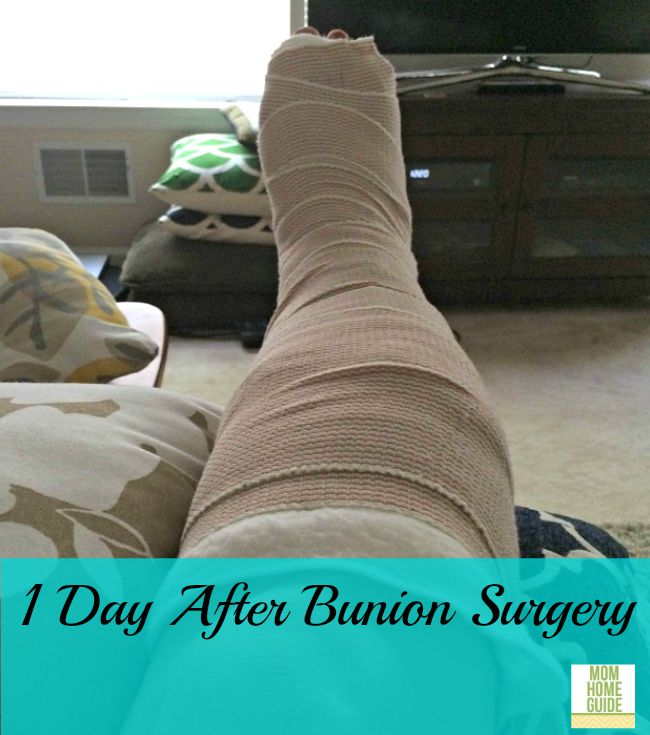 Foot one day after bunion surgery